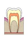 Afbeelding evolutie tandbederf 1