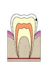 Afbeelding evolutie tandbederf 2