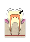 Afbeelding evolutie tandbederf 3