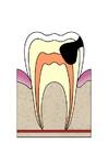 Afbeelding evolutie tandbederf 4