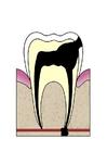 Afbeelding evolutie tandbederf 5
