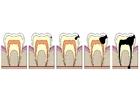 Afbeelding evolutie tandbederf